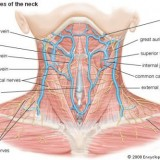 How Do I Code a Lipoma Removal from Neck