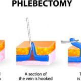 CPT Code for Stab Phlebectomy | What if less than 10 incisions?
