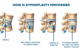 How to Bill for Kyphoplasty, Vertebroplasty and Annuloplasty | What is the CPT code for Kyphoplasty and CPT Code for Vertebroplasty